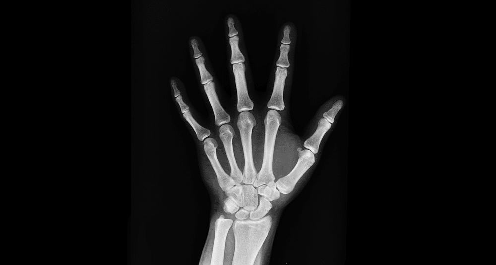 alea-quiz-quel-physicien-a-realise-la-premiere-radiographie-en-1895